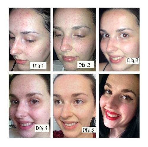 jabon con carbon activado para acne y manchas en rostro 120g