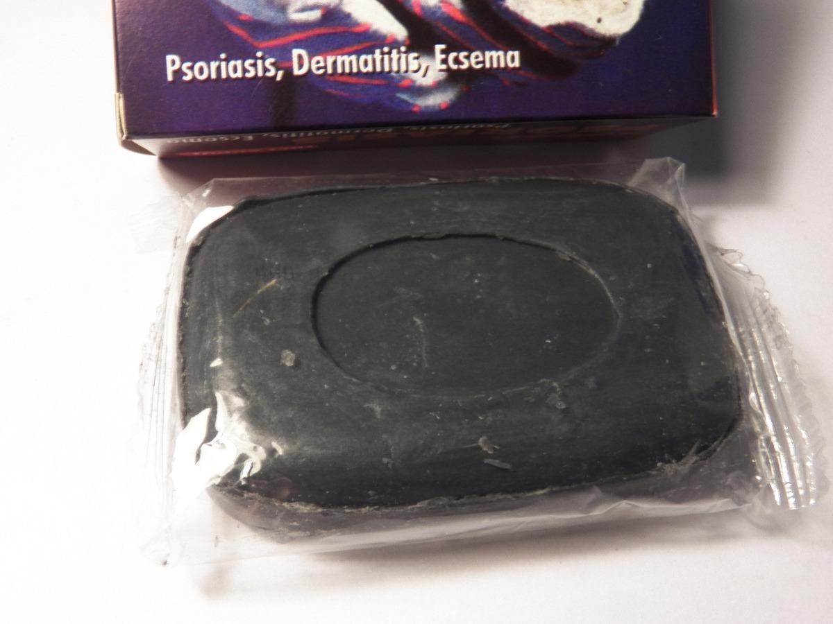 El tratamiento de la psoriasis del ungüento y la crema
