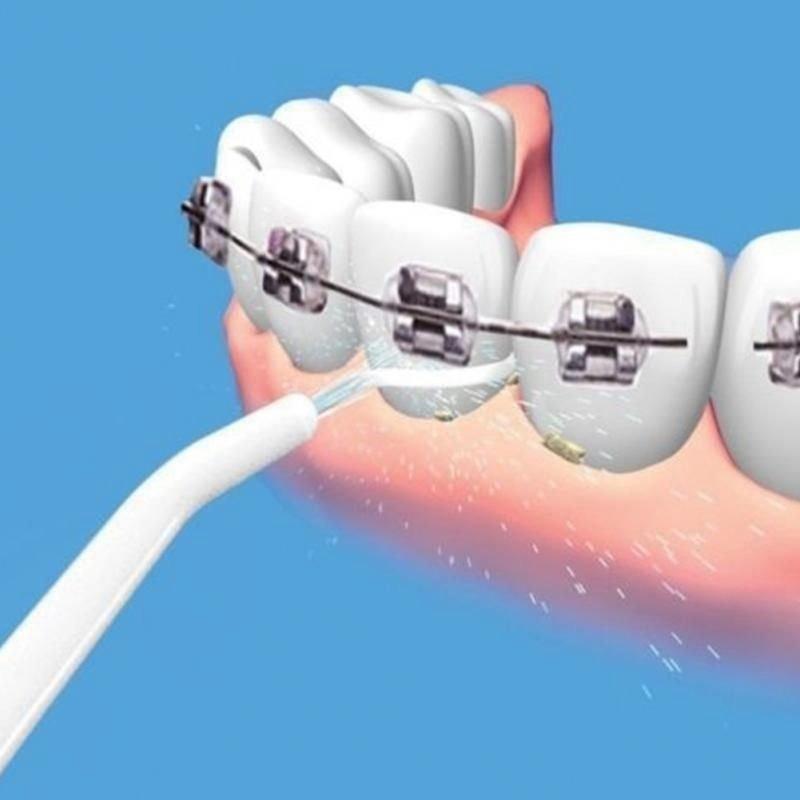 5333d482c Jato D Água Limpeza Oral Dental Power Floss Fio Dental Boca - R  24 ...
