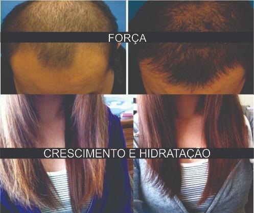 kabelol tônico capilar fortalecer crescer cabelo antiqueda