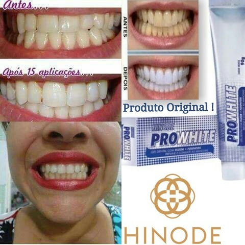 Kit 3 Gel Dental Clareador Hinode Pro White Oferta Especial R 19