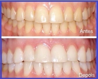 Kit 44 Clareamento Dental 6 Seringas 1 Par De Moldeira R 35 00