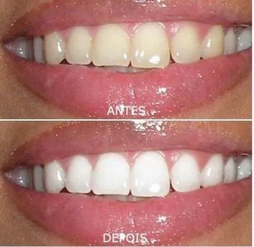 Kit Clareador Clareamento Dental Dente Completo Frete Gratis R 50