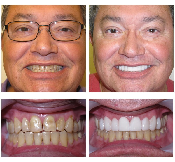 Kit Clareador Dental Gel White Light Clareamento R 83 05 Em
