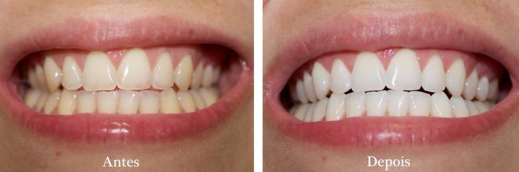 Kit Clareador Dental Mix Night 22 1 Par Moldeira R 99 00 Em