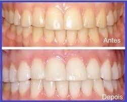 Kit Clareador Dental Mix Night 22 7 Seringa 1 Par Moldeira R 122