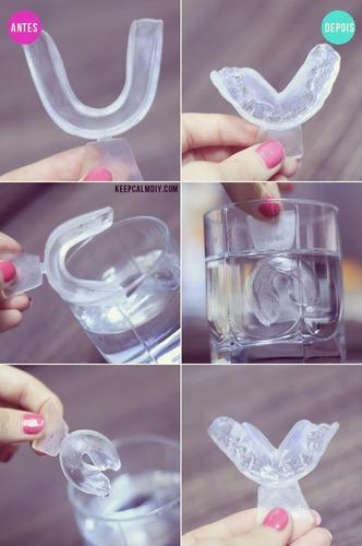 kit clareador dental whiteness gel, 10 seringas+ led