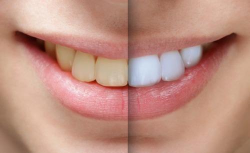 Kit Clareador Dental Whiteness Gel 22 Clareamento Luz Led R 37