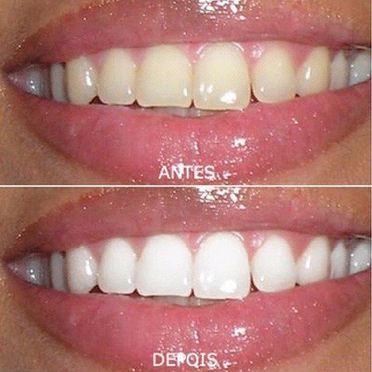 Kit Clareamento Caseiro Limpeza Dos Dentes Seringas Gel 44 R 39