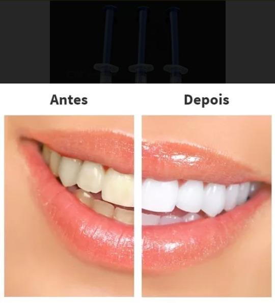 Kit Clareamento Dental 1 Seringa Gel 1 Moldeira R 30 99 Em