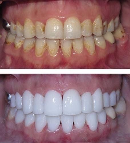 Kit Clareamento Dental 10 Gel Menor Preco Oferta R 89 00 Em