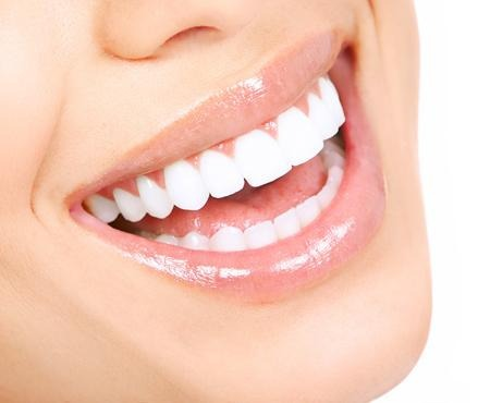 Kit Clareamento Dental 3 Unidades 16 2 Moldeiras 1 Estojo R 89
