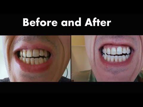 Kit Clareamento Dental 44 10 S O Completo C Moldeira R 74 00 Em