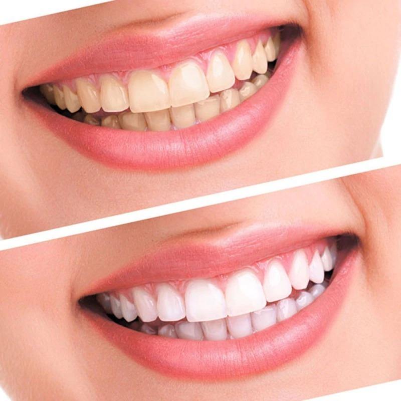 Kit Clareamento Dental 44 Peroxido C 10 Seringas Led Mold R 59