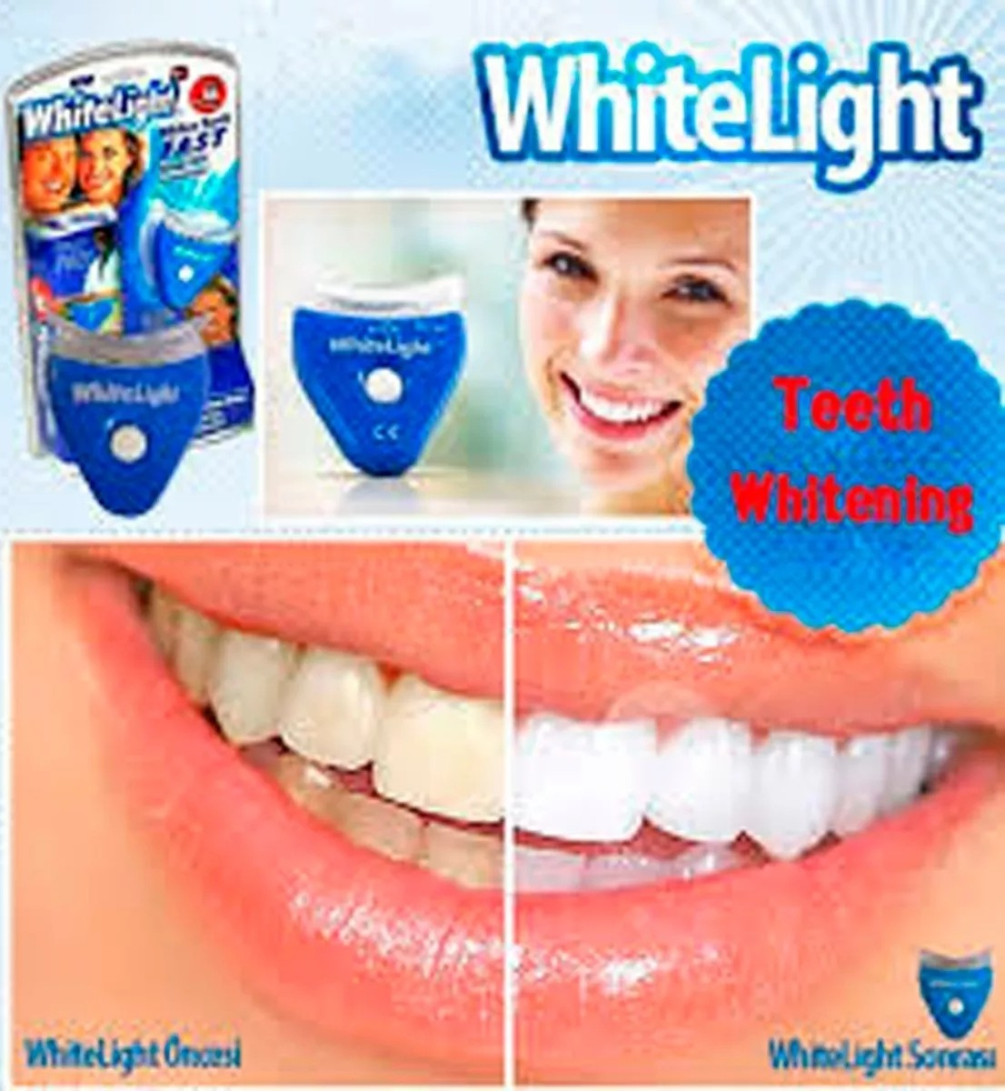 Kit Clareamento Dental Branquamento Ionic White Dente Branco R