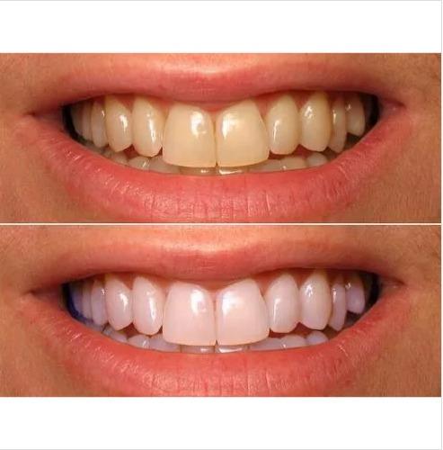 Kit Clareamento Dental Caseiro 3 Canetas Luz Ultra 8 Leds R 79