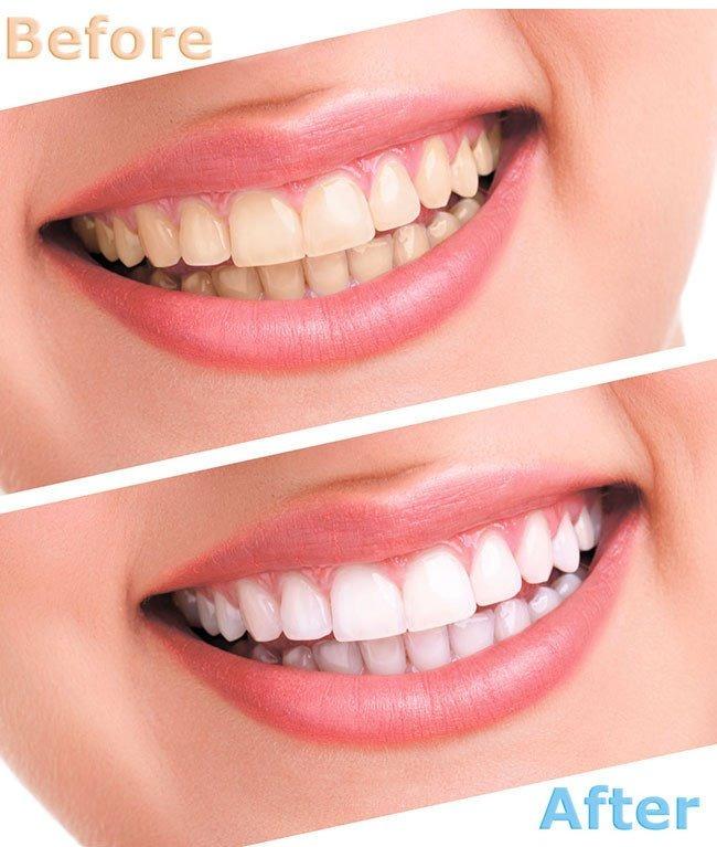 Kit Clareamento Dental Caseiro Clareador 44 10 Seringas R 72