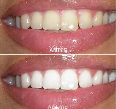 Kit Clareamento Dental Dente Branco Gel 4s 22 44 Luz R 39 99