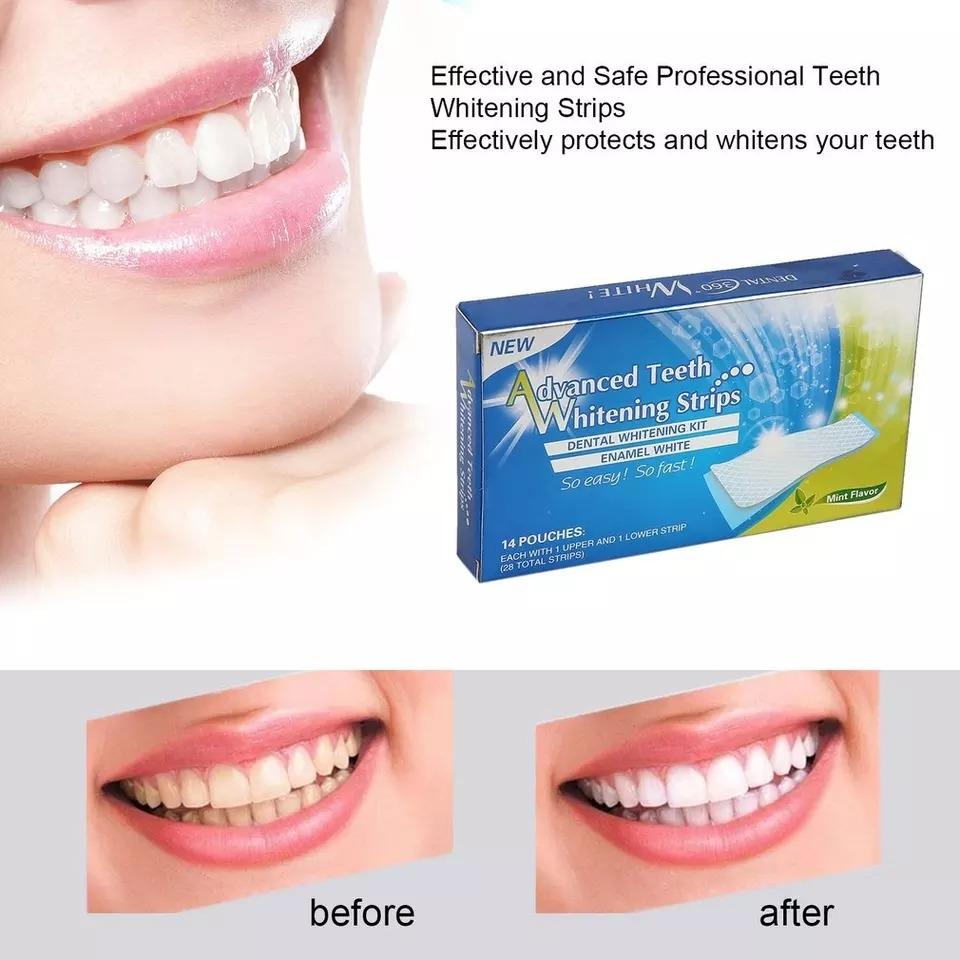 Kit Clareamento Dental Fitas Whitestrips Gel Adesivas R 65 00