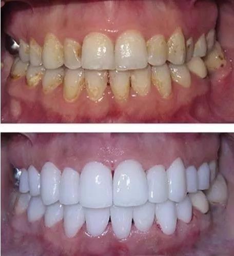 Kit Clareamento Dental Gel 44 3 Clareador Laser Moldeiras R 39