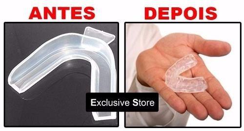 Kit Clareamento Dental Peroxido De Carbamida 40 C Moldeira R