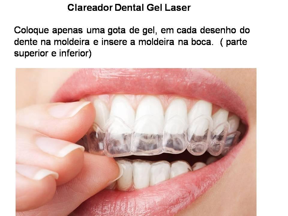 Kit Clareamento Dental Seringas De Gel Moldeira E Laser R 55 00