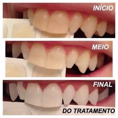 Kit Clareamento Dental Whiteness 44 10 Seringas Promocao R 99 99