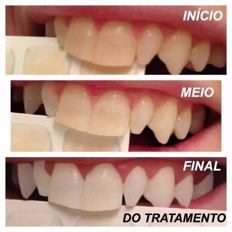 Kit Clareamento Dental Whiteness Gel 22 Clareador 6 Gel R 79 00