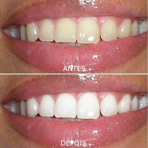 kit clareamento dental whiteness gel 44% clareador c/3 laser