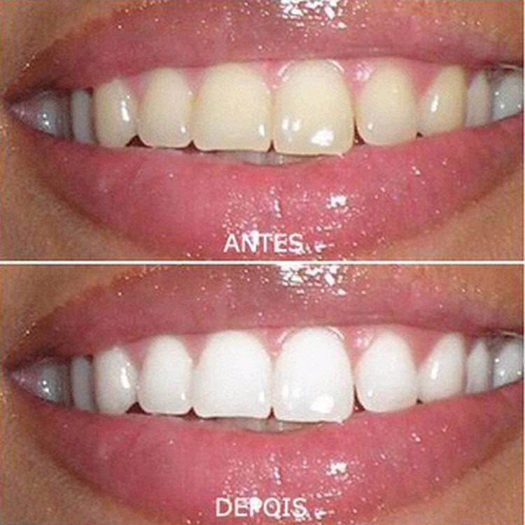 Kit Clareamento Dental Whiteness Gel 44 Clareador Luz Led R 110
