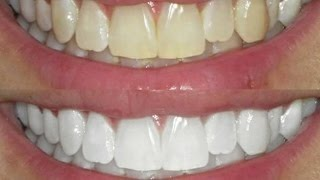 kit-clareamento-dental-whiteness-gel-44-clareador-reminer-D_NQ_NP_792521-MLB25809986422_072017-F.jpg