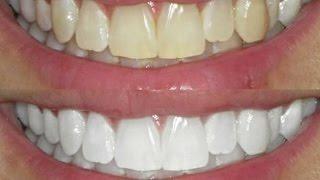 Kit Clareamento Dental Whiteness Gel 44 Clareador Reminer R 69