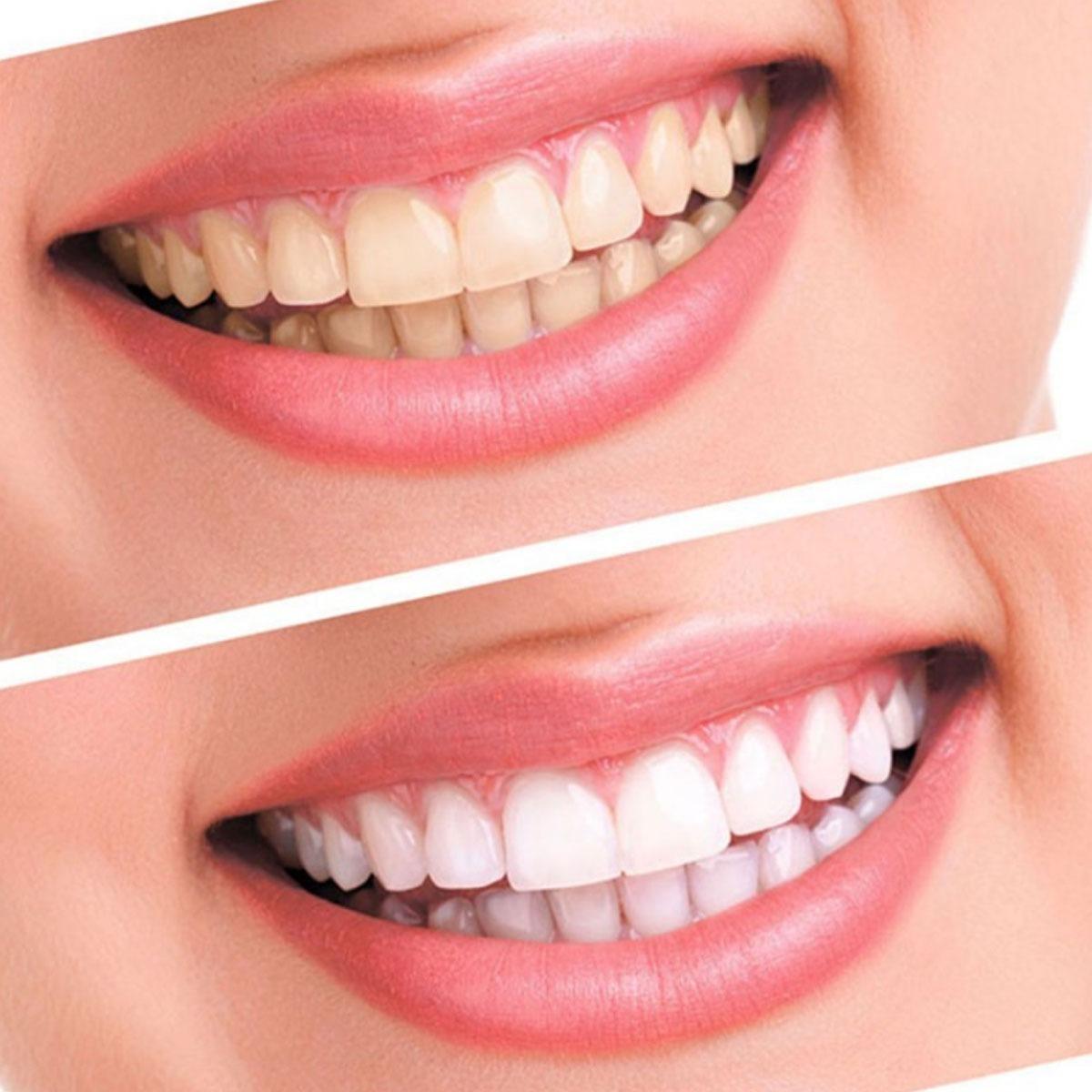 Kit Clareamento Farmacia Caseiro Dental Gel 44 Clareador R 49 00