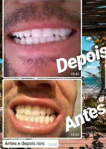 kit de clareamento dental hp maxx eua