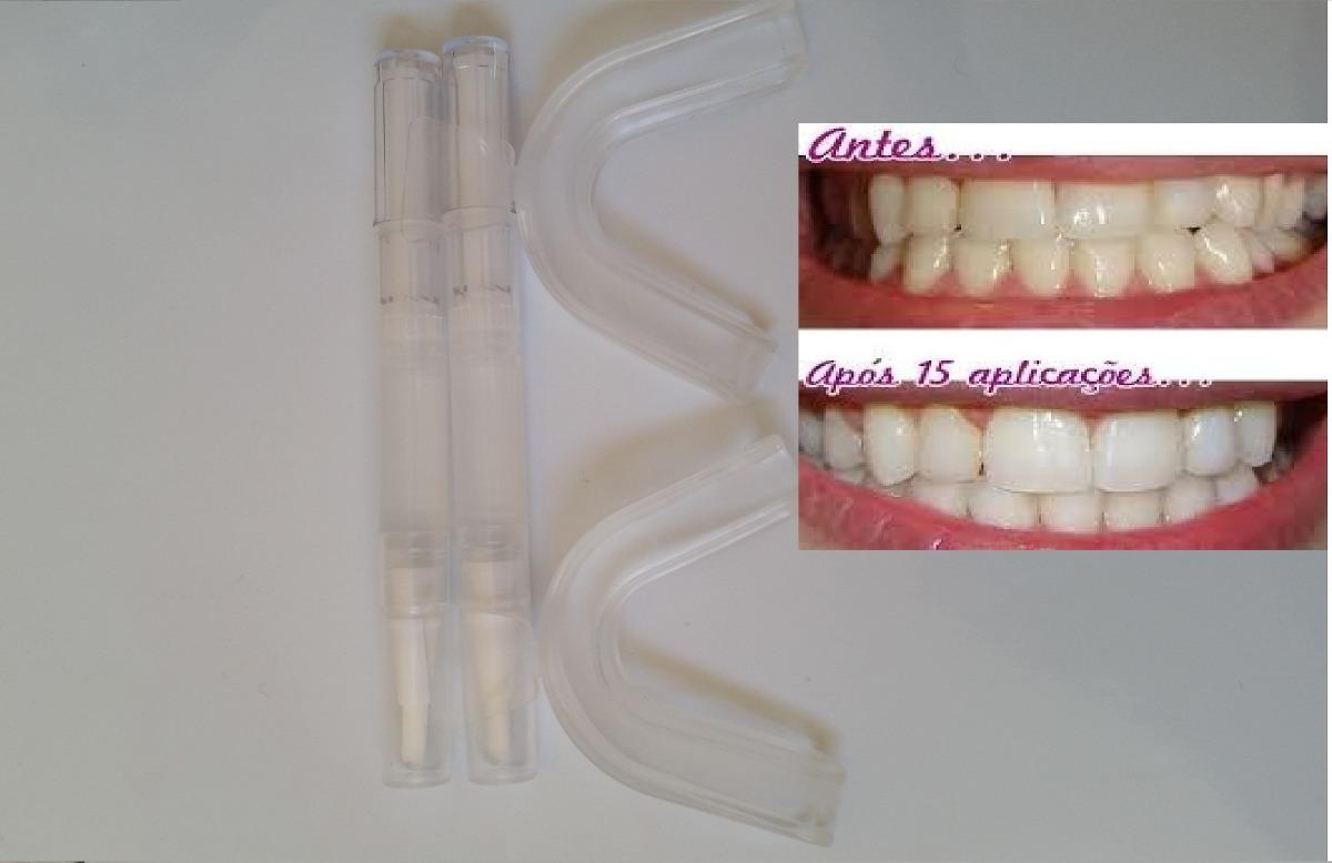 Kit Dentes Brancos Com Moldeira E 2 Canetas Clareadoras Top R 72