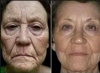 kit galvanica facial nuskin