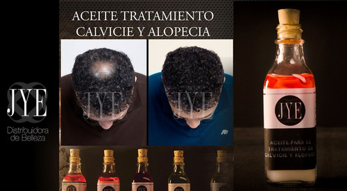 kit mas cabello y mas barba lociones jye pack 04 ultra