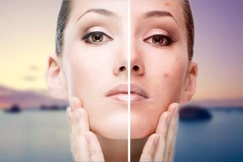 kit pieles grasas acne laca