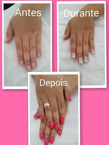 kit unhas gel