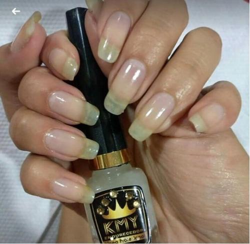 kmy tratamiento endurecedor de uñas -ahora 10 ml-