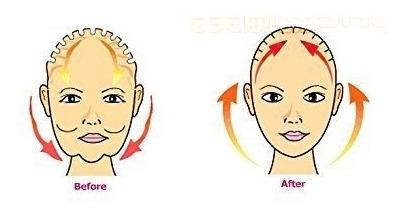 kolight®anti wrinkle half face slimming cheek