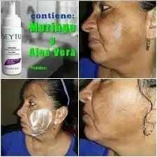 la crema aclaradora facial seytu permite: