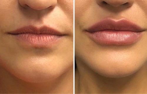 labios acido hialuronico juvederm-plasma-botox-dermapen