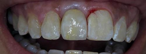 laboratorista dental porcelana