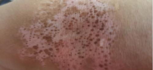 lámpara uvb de banda estrecha philips vitiligo/psoriasis