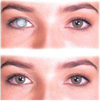 lente de contato hidrosol filtrante / pupila preta (1 par)