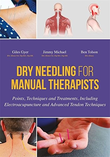 libro dry needling for manual therapists: points, techniqu