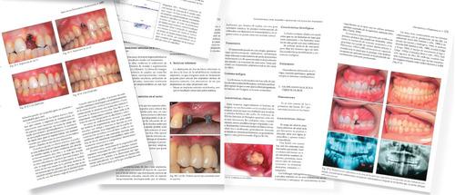 libro periodoncia clinica e implantologia oral 2014 bascones