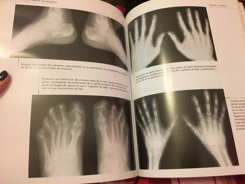 libro, radiología en reumatología. medicina.