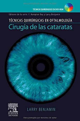 libro tecnicas quirurgicas en oftalm cirugia de las catarata